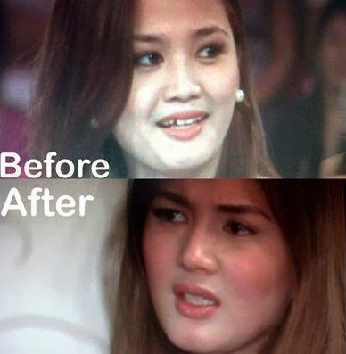 Denise Cornejo Before and After Photo
